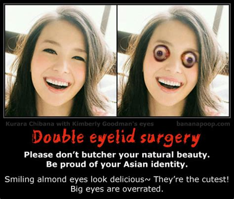 Asian Plastic Surgery Meme - bananapoop humor demotivational health 10