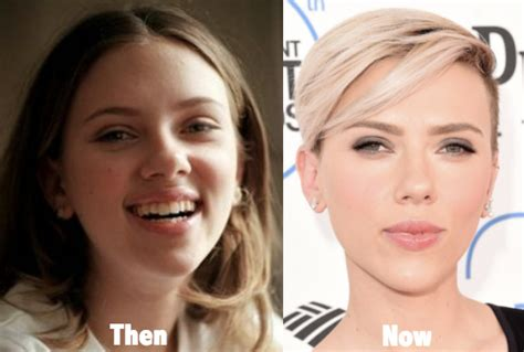 Winehouses Scarlet Nose Hints That Recent Troubles Are Taking Their Toll by Johansson Nose Plastic Surgery