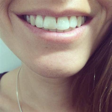 oral   white review    whiter teeth