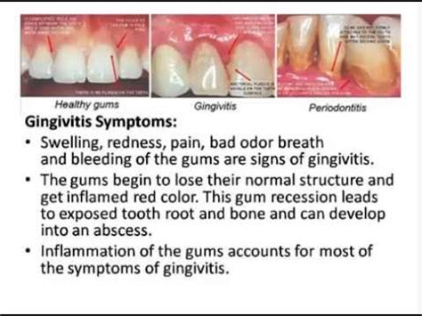 Get Rid Of Find Search How To Get Rid Of Gingivitis Dentists Hide From You