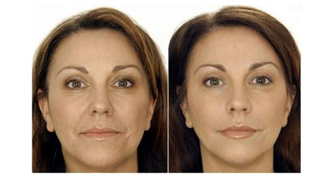 cosmetic injections dermal fillers geelong doncaster