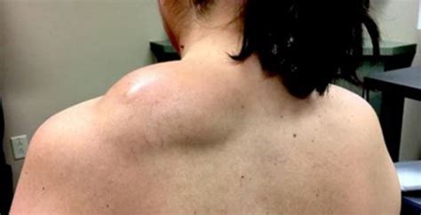 Dr Pimple by Pimple Doctor Takes On Yet A Lipoma