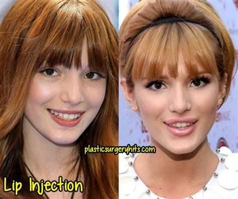 bella thorne before and after surgery bella thorne plastic surgery before and after plastic