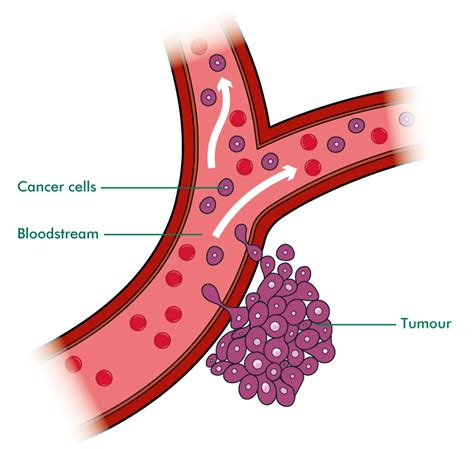 cancerous tumor on what is secondary bone cancer understanding macmillan cancer support