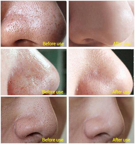 Egg White Mask Peel Limited blackhead removal cleansing peel mask