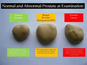 Prostate health news prostate health information