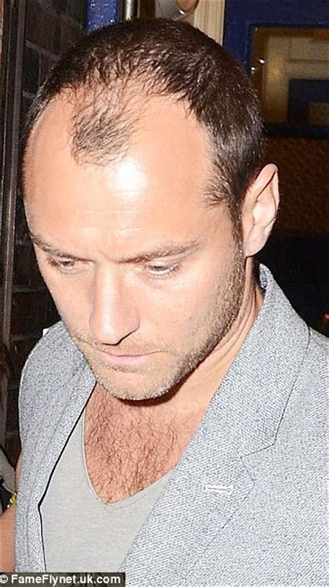 forehead receading hairline does provillus or procerin work for a receding hairline