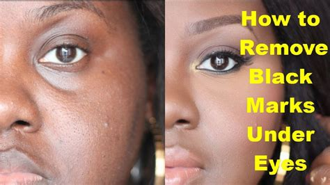 how to get rid of light spots on face how to get rid of light spots on dark skin