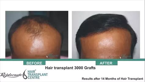 is hair transplant safe who is the best hair transplant surgeon in jaipur quora