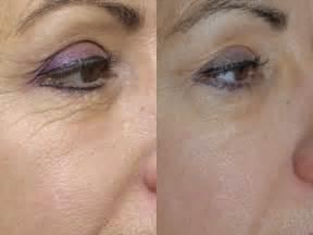 acne scar removal laser treatment for acne scars dark