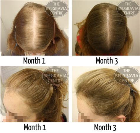 hairpieces for women with female pattern baldness will hair extensions help my thinning hair
