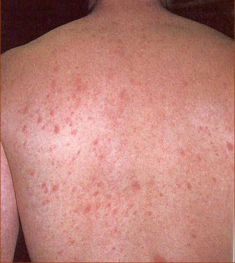 Raja Gatal Alergi Dan Penyakit Kulit 301 moved permanently