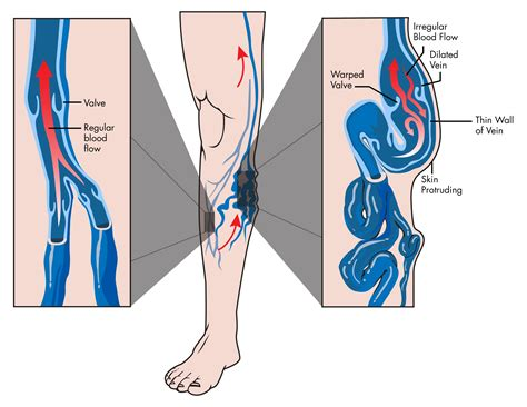 In Vein varicose veins vein valves and venous insufficiency ask