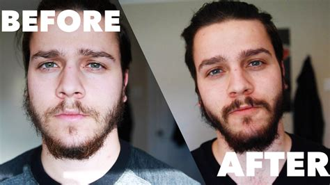 Before Or After by Patchy Beard Before And After Www Pixshark Images