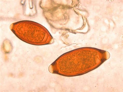 Intestinal Worms In Stool by Human Stool Worm Intestinal Parasites Quotes
