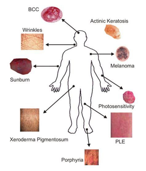 type of disease skin conditions la palabra del dia quot piel quot spanishdict answers
