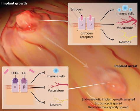 Has Trouble Detoxing Estrogen Endometriosis by New Compounds Show Promise Against Endometriosis