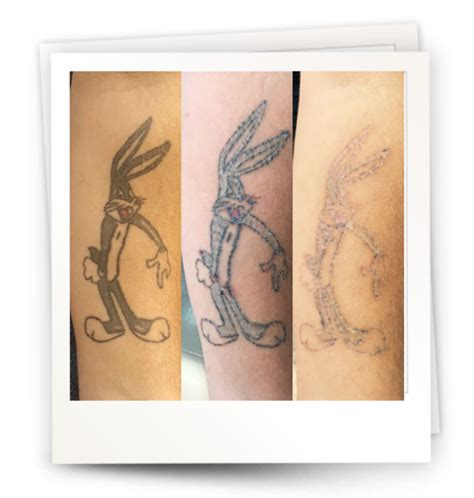 tattoo removal kl alma lasers sinon q switched ruby laser
