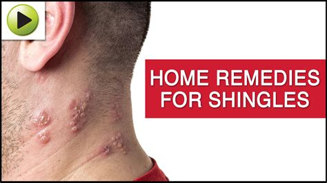 skin care shingles ayurvedic home remedies