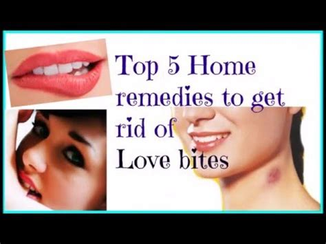 tips top 5 home remedies to get rid of bites