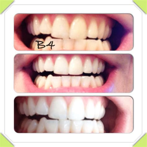natural teeth whitener results    times