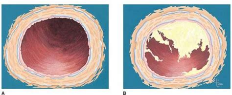 artery cross section arteriosclerosis atherosclerosis body diseases