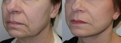contour sagging jowls lift up your jowls and smile lower facial rejuvenation
