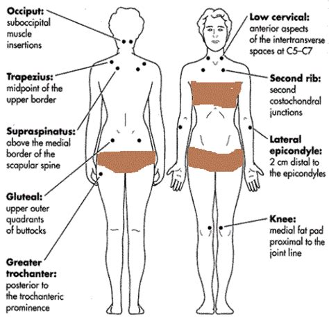 fibromyalgia tender points diagram fibromyalgia tender points chart fibromyalgia tender