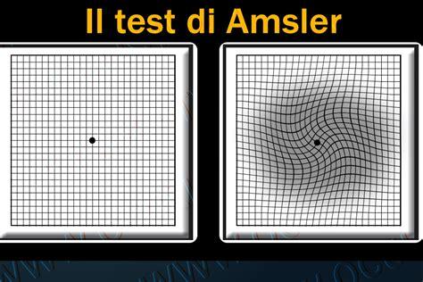 test della vista controllo della vista con la griglia di amsler oculisticatv