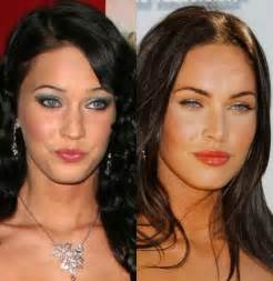 Comfort Dental Implants Funny Pictures Celebrity Before And After Plastic Surgery