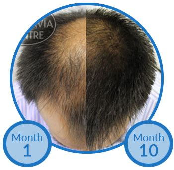 propecia finasteride hair loss medication bernstein study explores treating male hair loss with topical