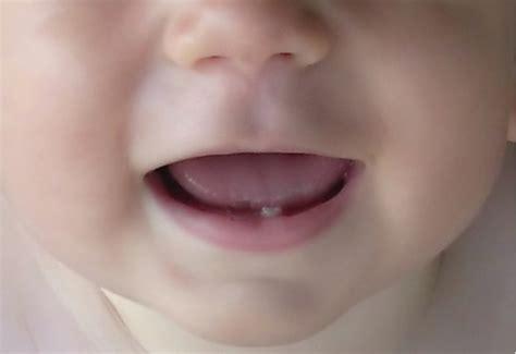 Berapa Pemutih Gigi gigi anak mulai tumbuh umur berapa drg dio nella