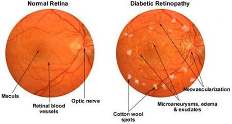 fundus exam findings diabetic retinopathy causes symptoms and prevention