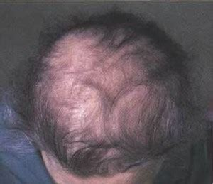 thyroid pattern hair loss thyroid hair loss is this the cause of your thinning hair
