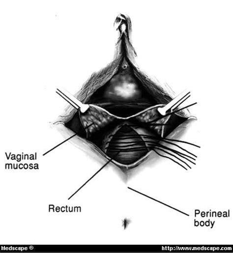 rectocele diagram figures