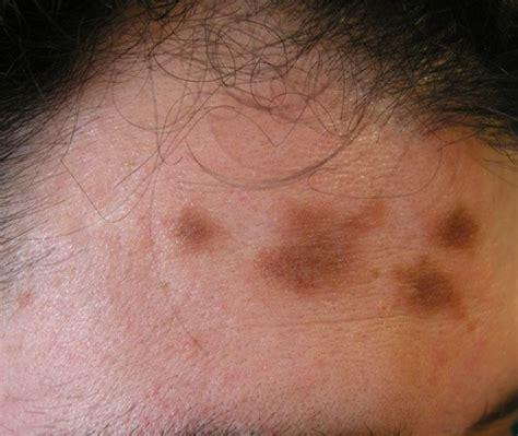 imagenes de manchas oscuras en la cara c 243 mo eliminar las manchas en la piel blogmujeres com