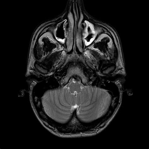 mal di testa sopra gli occhi a caccia di mal di testa i tipi di mal di testa pi 249 diffusi