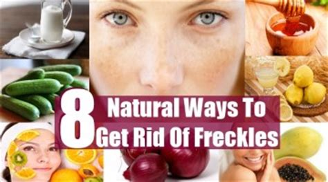 10 Ways To Get Rid Of Freckles by 10 Top Ways To Cure Tinnitus Health Care A To Z