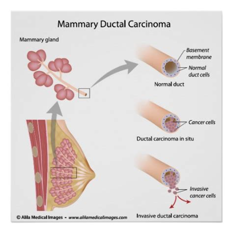 breast milk ducts diagram breast cancer diagram 28 images learn about cancer