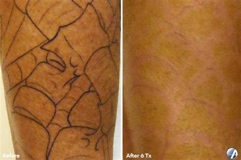 before and after photos vanish laser clinic alexandria va