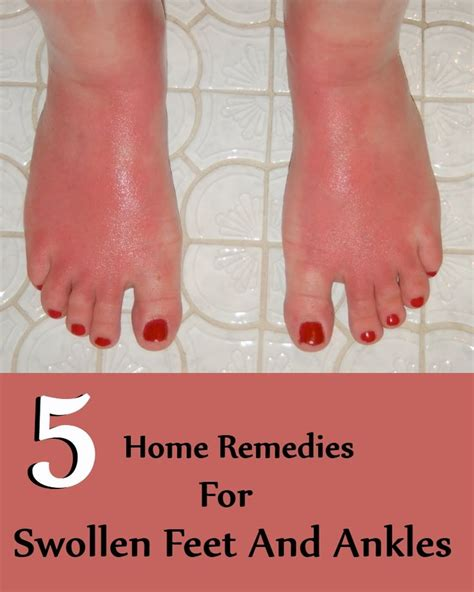 779 best images about home remedies on home