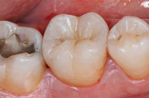 Piombatura Denti by Gallery Smilife