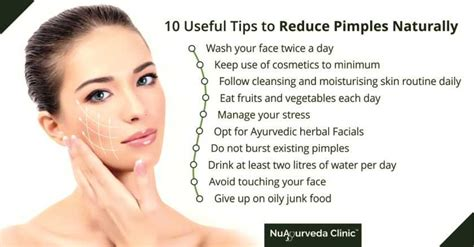 how to stop my from naturally how to get rid of pimples 6 tips to remove pimples naturally