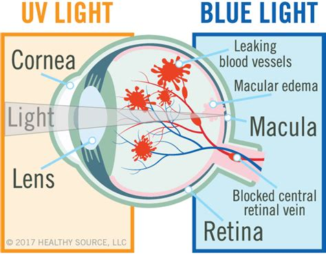 blue light and macular degeneration reduce sensitivity to light glare and eye strain and