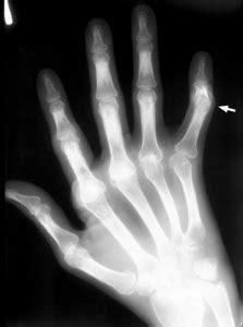 Boutonniere Deformity - OrthopaedicsOne Articles