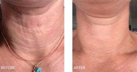tattoo removal liquid injecting glycolic acid removal removal