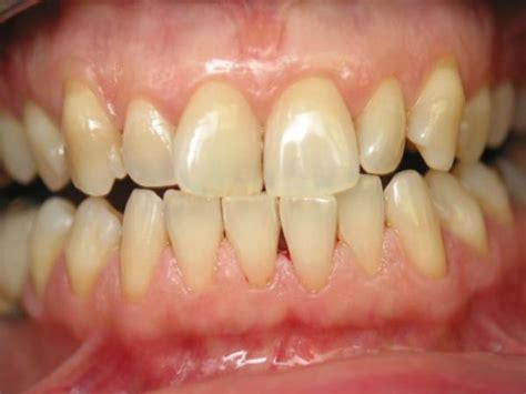 bad teeth veneers and veneers white and even teeth for a smile immediate smile