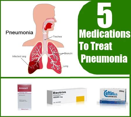 how to treat pneumonia with drugs and medications search