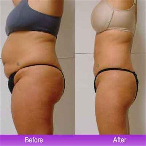 Detox After Smart Lipo by 10 Abdomen Liposuction Dr Bruce Freedman