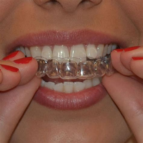 genkent  pairs thermoforming dental mouthguard teeth